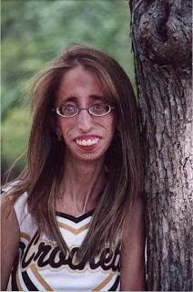 mulher mais feia do mundo