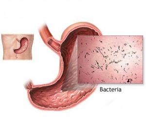 como acabar com a diarreia