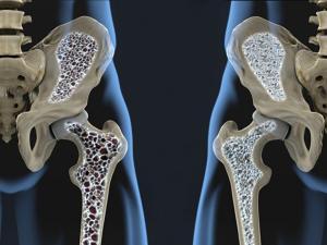 como se adquire a osteoporose