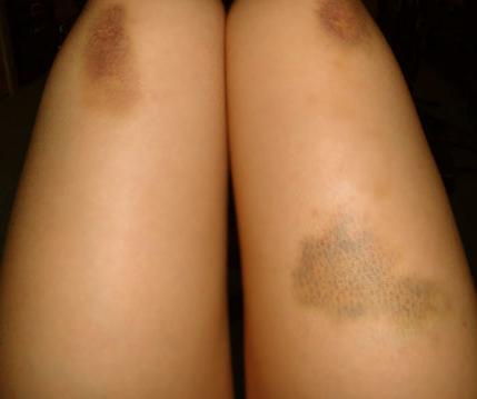 manchas roxas na pele