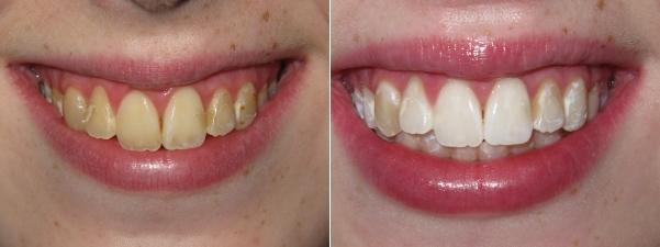 Clareamento Dental Com Moldeira Precos E Cuidados